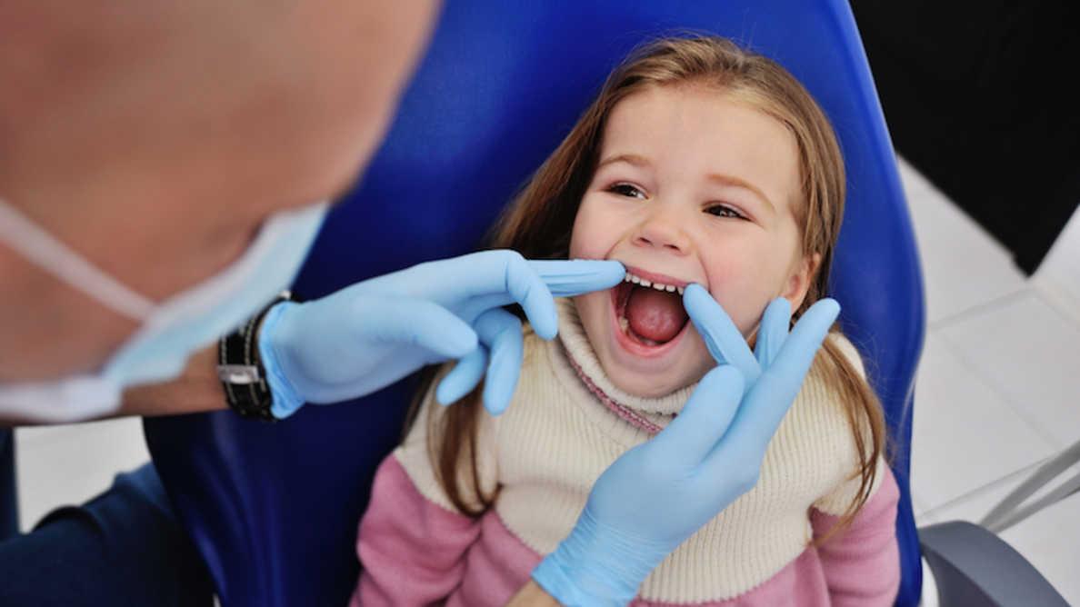 Zubni ispuni možda nisu najbolji izbor tretmana kod dečijeg karijesa