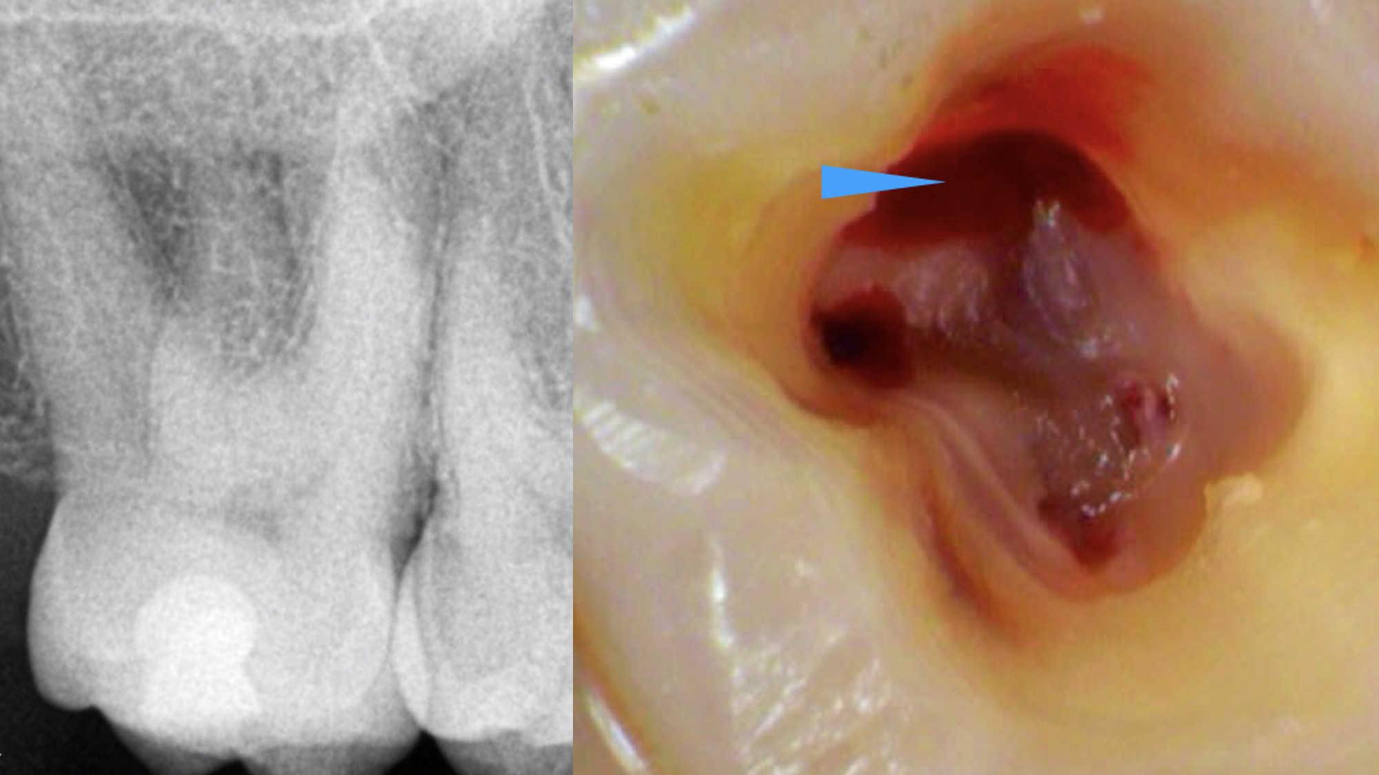 Kliničko lečenje drugog molarnog kanala u maksili u različitim anatomskim situacijama